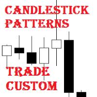 Candlestick Patterns Trade Custom