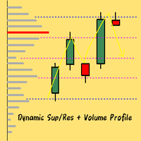 Dynamic Level Volume Profile